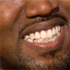 Kanye West si-a inlocuit dintii cu diamante si explica videoclipul Runaway